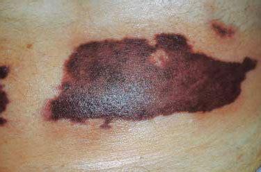 skin necrosis picture 9