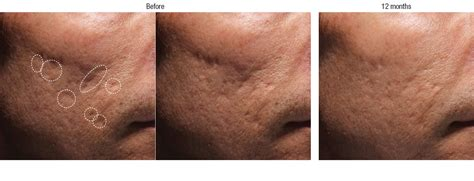 is sculptra for acne scares picture 6