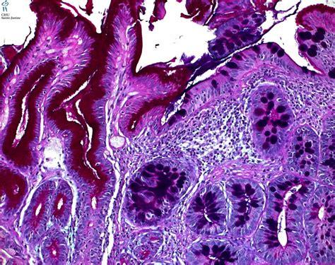 Metaplasia intestinal picture 5