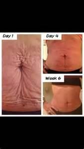 nu skin stretch marks picture 6