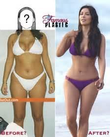kim kardashian lipo stomach picture 2