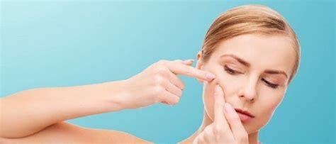 dermatoligist advice for acne care picture 9
