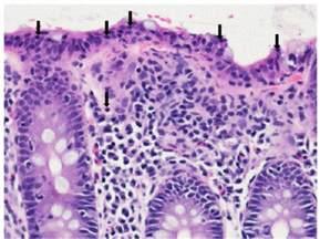 colon biopsy picture 2