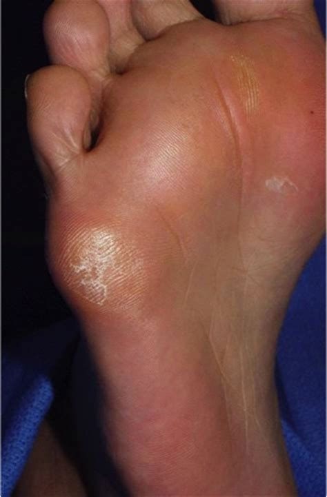 what does a plantar wart look like picture 7