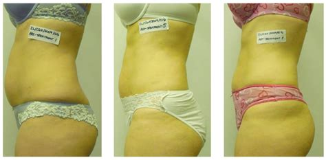 order b12 lipotropic injections online picture 7