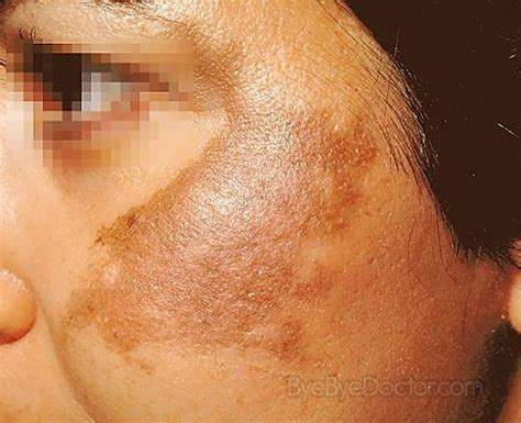 abnormal red blotches on skin picture 10