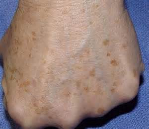 fading liver spots picture 10