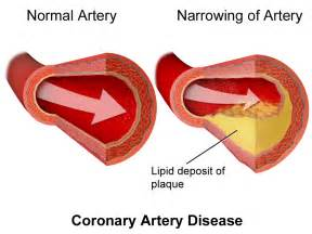 Heart disease cholesterol picture 11