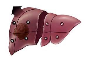 fatty liver treatment picture 3