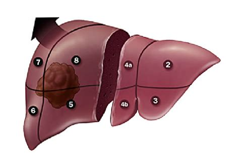pain medication after liver procedure picture 9
