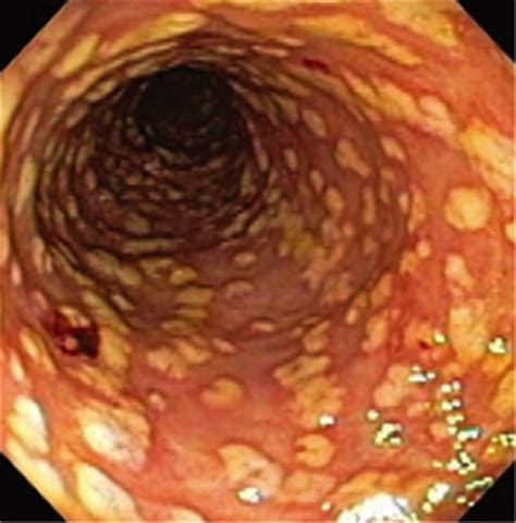 infection of colon picture 2