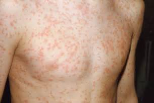 toddler white spots on skin picture 17