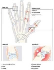 gamot sa gout symptoms picture 17