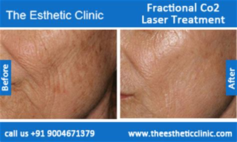 find at less cost the fractional laser for picture 8