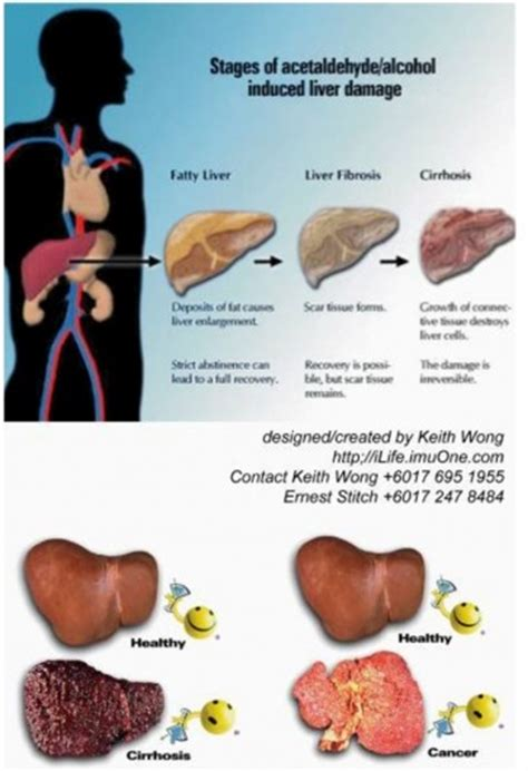 ways to repair liver from alcohol damage picture 2