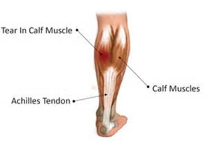calve muscle tear picture 2