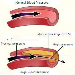 floradix high blood pressure picture 9