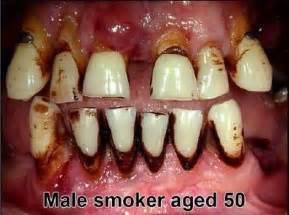 cigars teeth picture 10