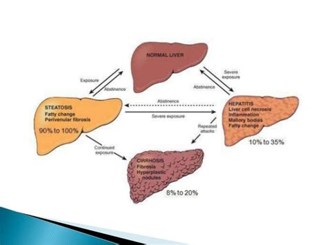 alcoholic fatty liver disease symptoms picture 2
