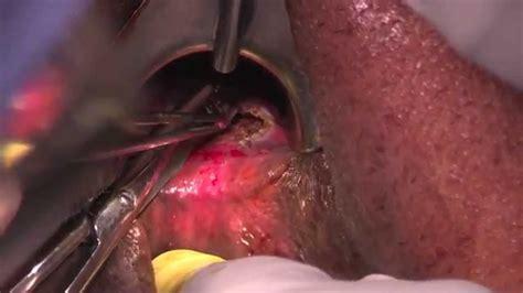 colon fistula surgery picture 11
