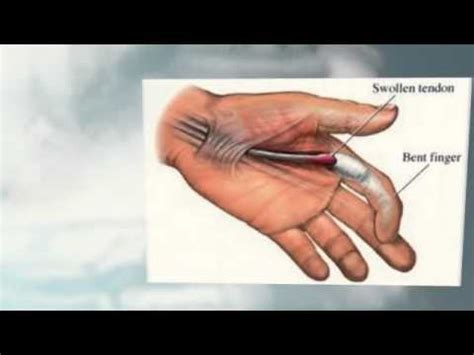 first finger joint pain picture 2