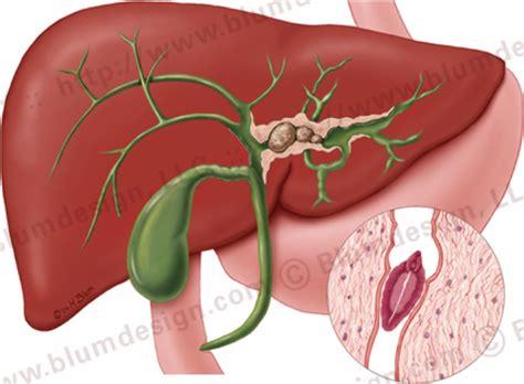 cholangitis picture 1