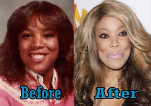 mississippi weight loss surgery picture 1