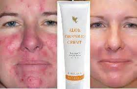 aloe vera acne picture 2