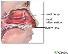 can wisdom h cause problems with the sinus picture 6