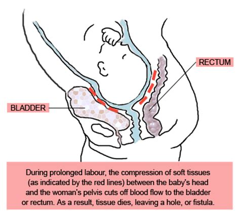 african deseases affecting the bladder picture 14