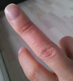 ed skin on fingers picture 6