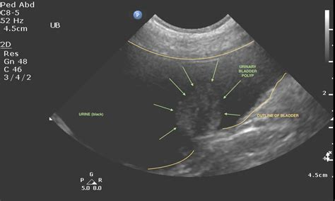 cpt code ultrasound urinary bladder picture 9