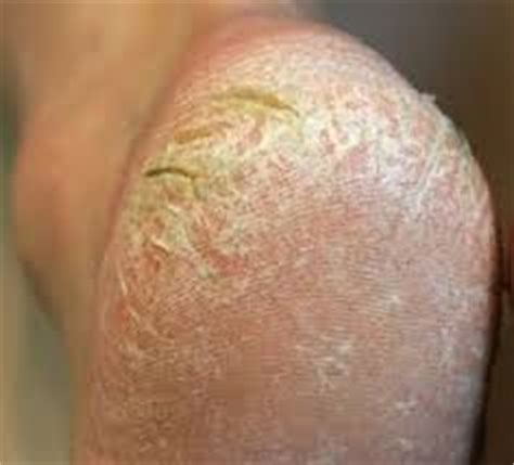 foot skin problems picture 13