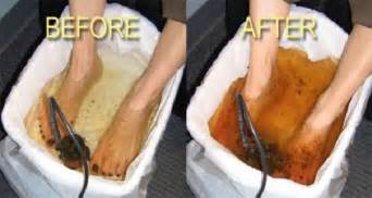 detoxing threw the feet for cancer picture 3