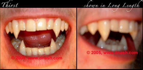 custom teeth picture 6