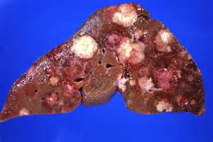lesions on the liver picture 10