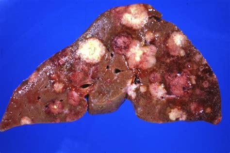 carcinoma pancreas colon liver picture 5