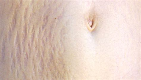 what makes a stretch mark leak picture 4