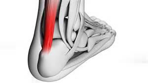 heavy-load eccentric calf muscle trainingcalf strain picture 11