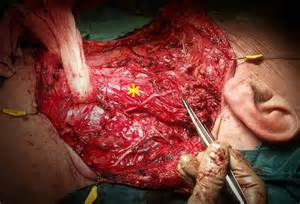 thyroidectomy picture 15