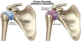 adhesion hip joint pain picture 6