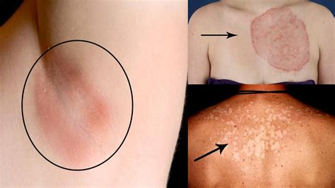 yeast infection remedies picture 1