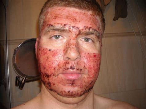 co2 spray acne picture 3