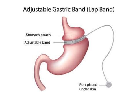 will gastric byp work if you are weight loss resistant picture 14