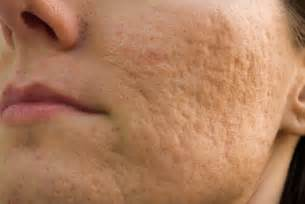 acne cremes picture 3