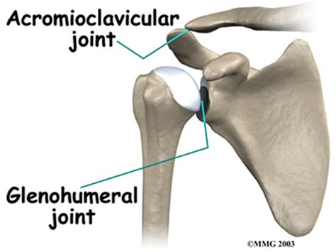arthritis of the ac joint of the shoulder picture 15
