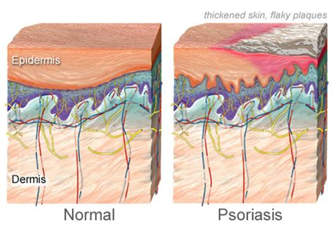 flaky dandruff like skin on body picture 8