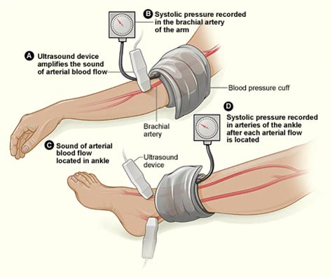 High blood pressure pain in arms and legs picture 6