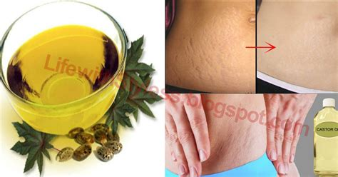 boil oil com stretch marks picture 13