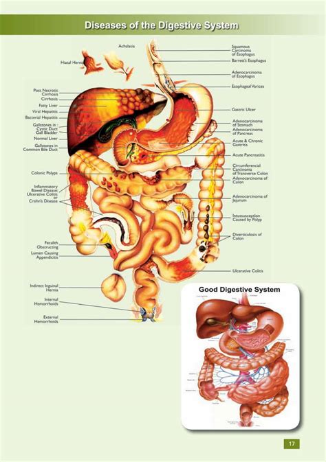 digestion system problems picture 7
